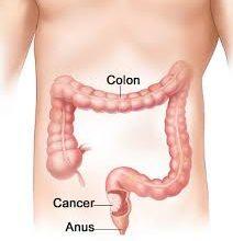 Beware of Colon Cancer Symptoms